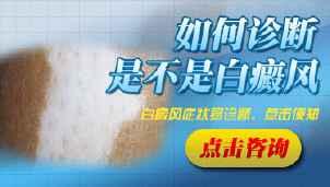 四川白癜风医院:白癜风怎样确诊