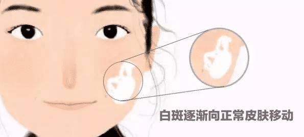 四川白癜风医院解答:儿童要如何预防白斑