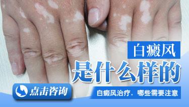 成都治白斑哪个医院较好?白癜风初期的时候有哪些症状表现呢