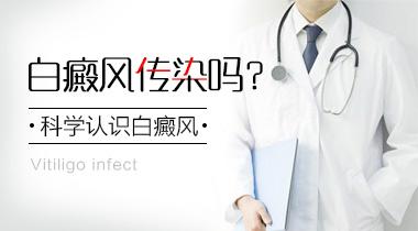 成都治疗白斑医院?手部为什么会患上白癜风呢?